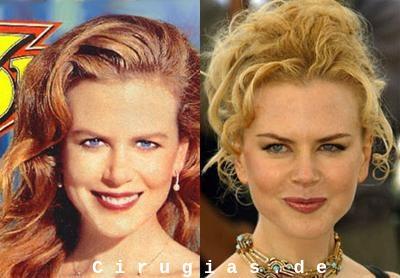 La Rinoplastia de Nicole Kidman