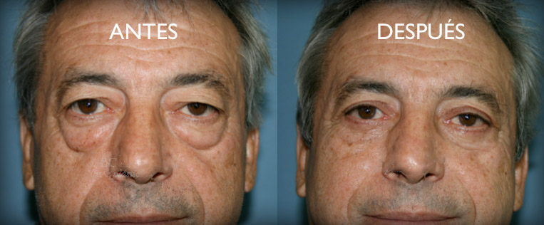blaferoplastia antes y despues
