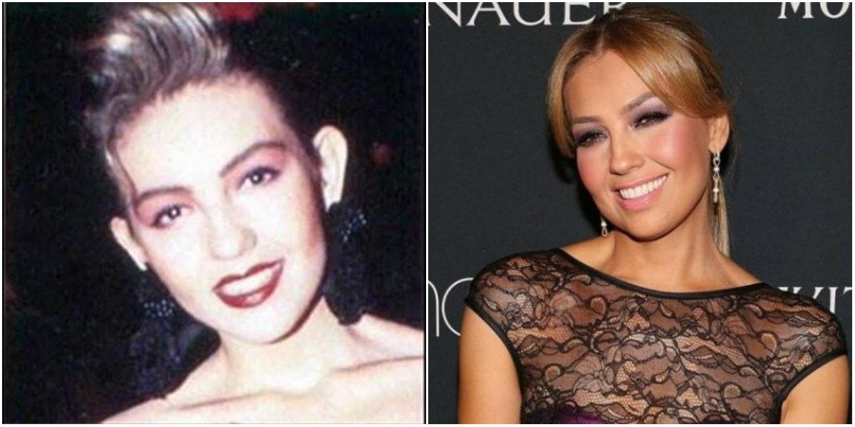Cirugía de orejas de Thalía