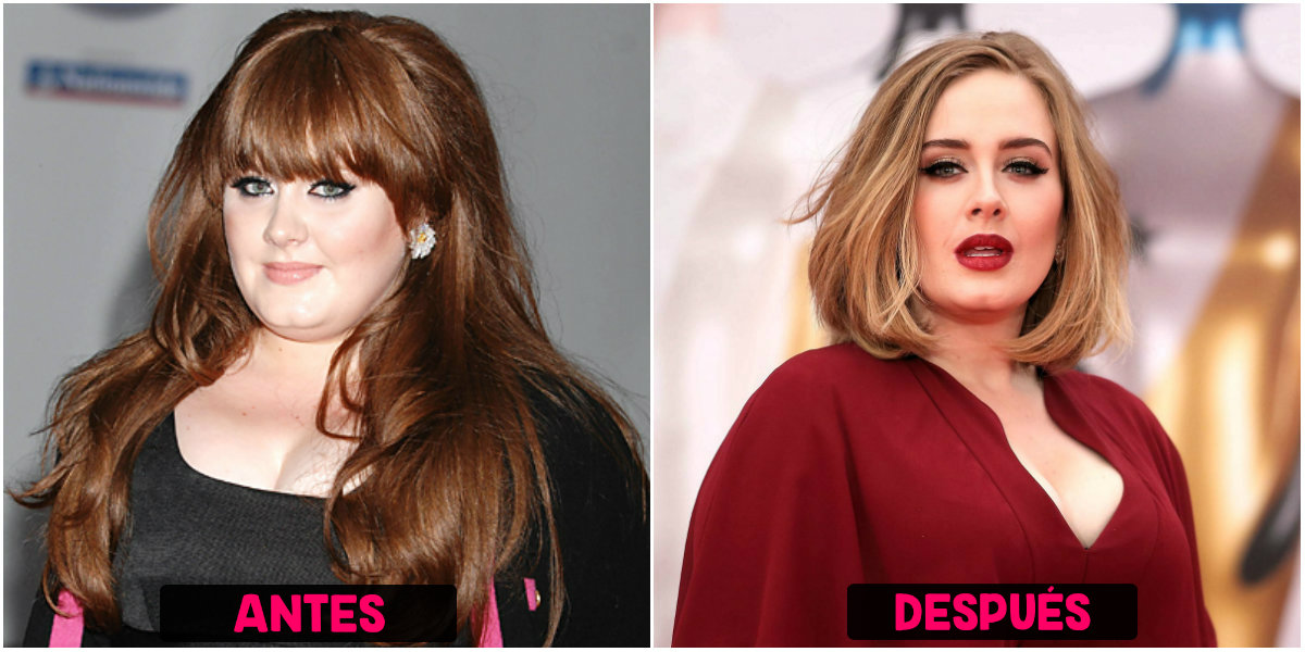 Rinoplastia de Adele