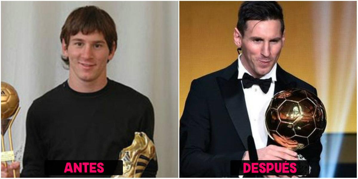 Rinoplastia de Messi