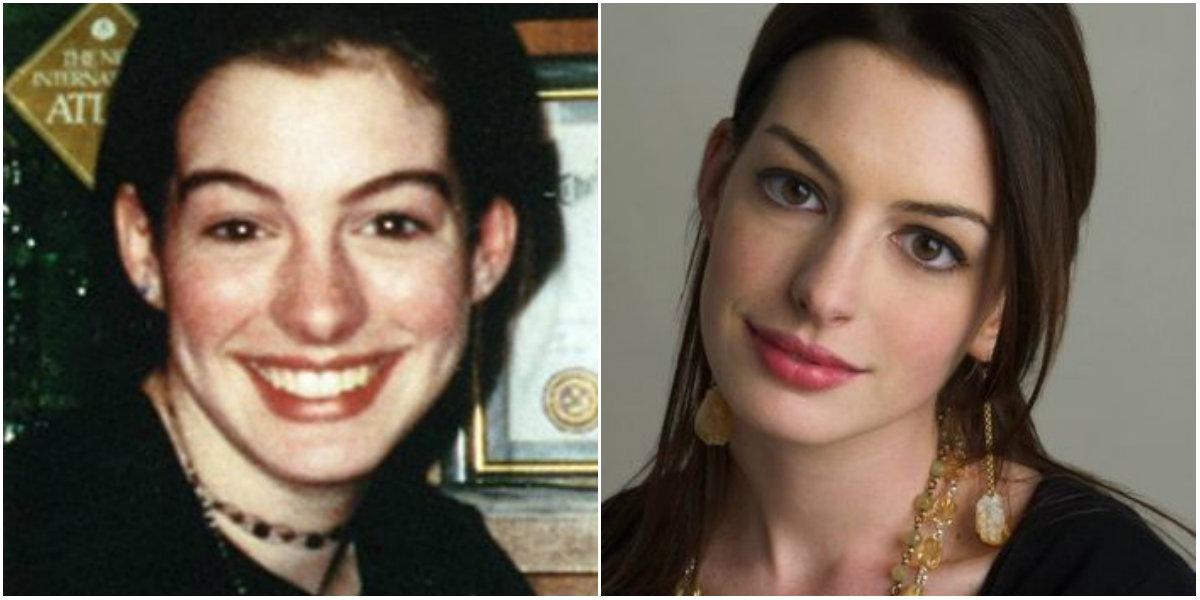 Anne Hathaway cirugías