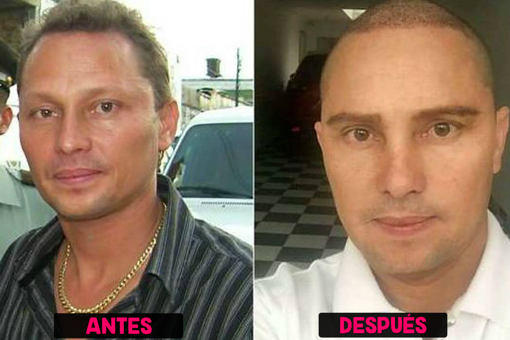 Antes y después de Giovanny Ayala