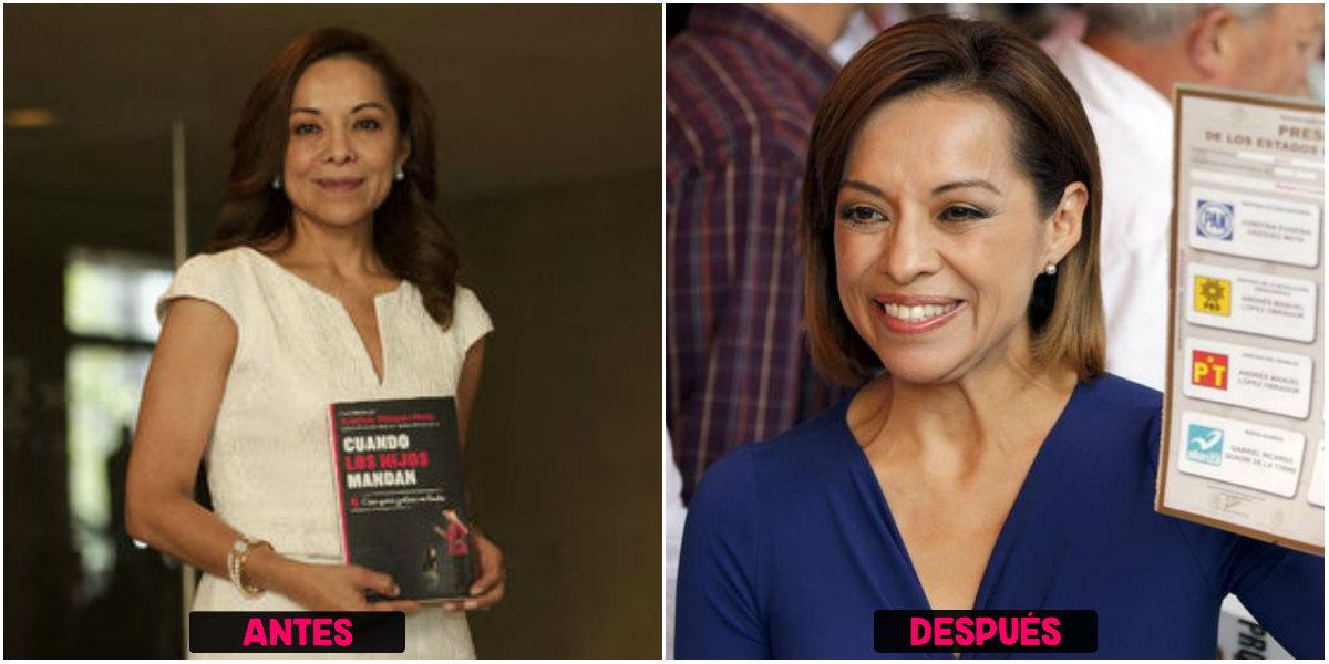 Cirugía de Josefina Vásquez