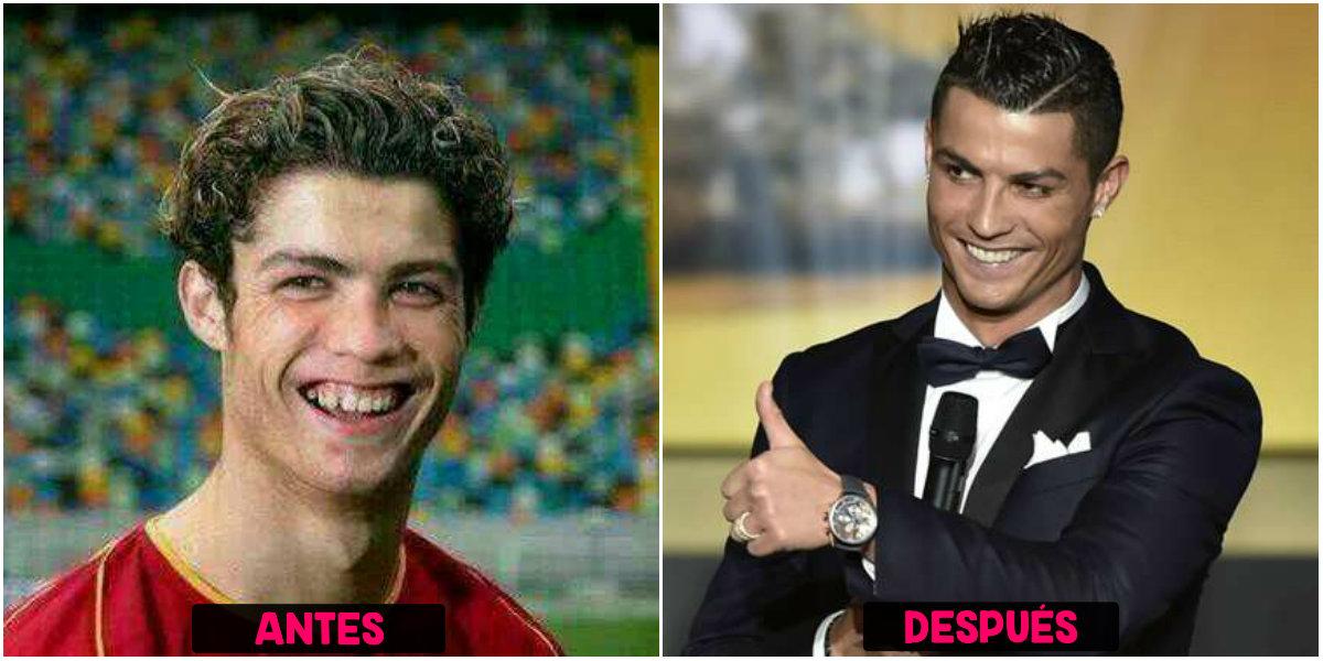 Cirugías de Ronaldo CR7