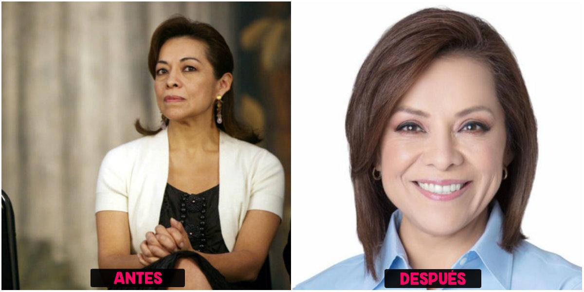 Cirugías plásticas de Josefina Vásquez