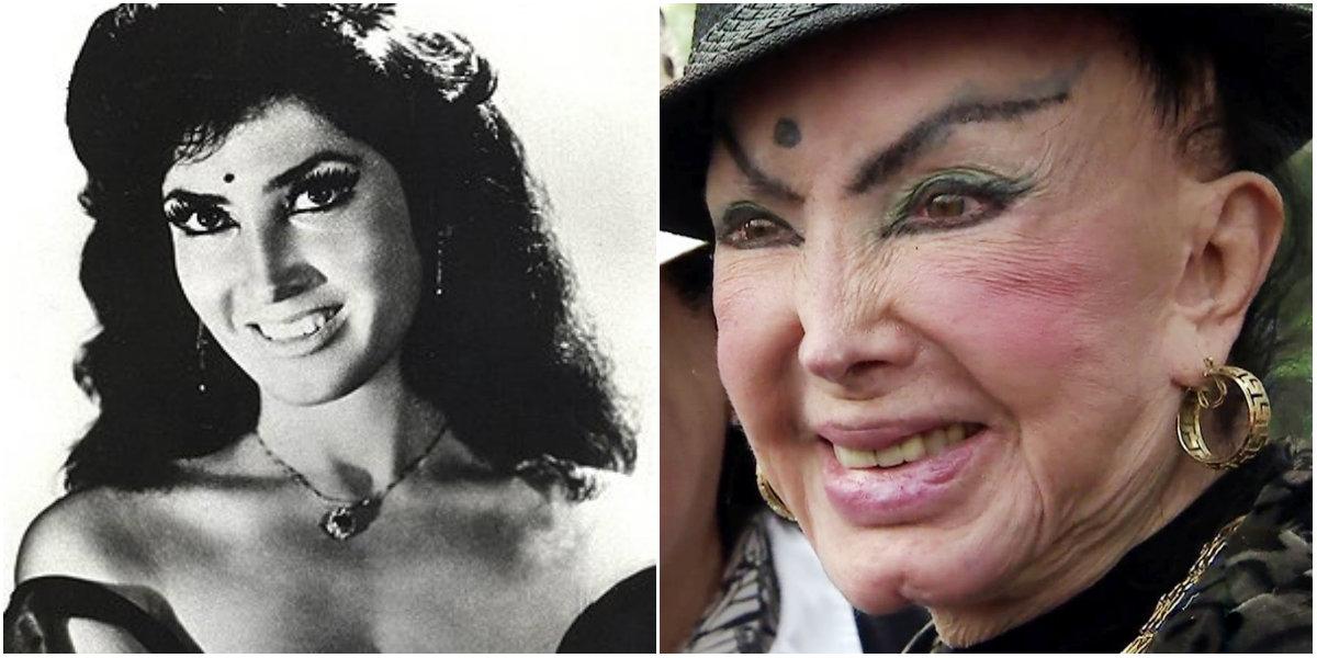 Irma Serrano cirugías