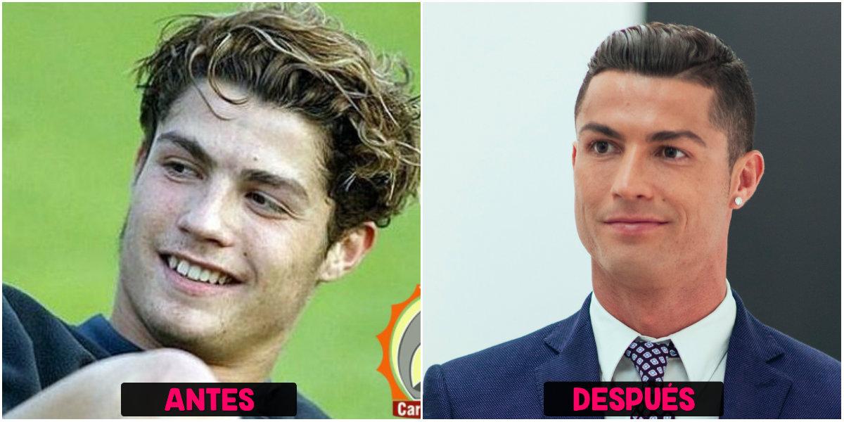Ronaldo adicto al Bótox
