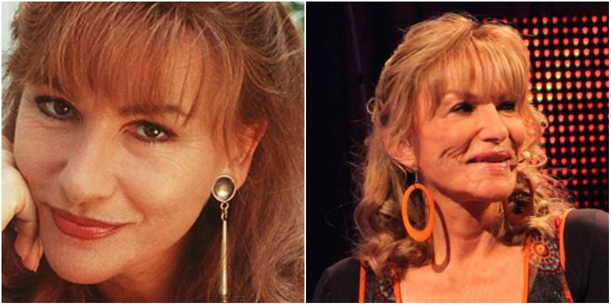 Sandra Solimano antes y después