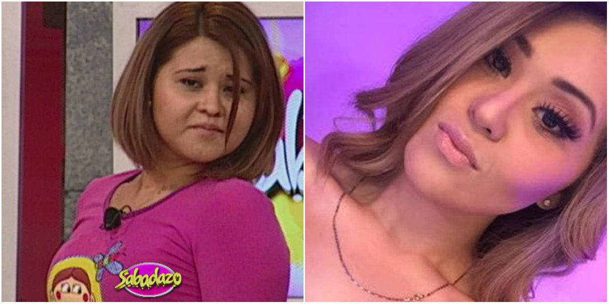 Antes y después de Gomita