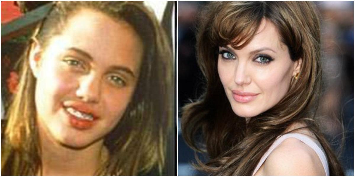Cantopexia de Angelina Jolie