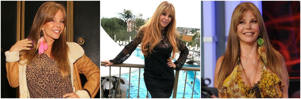 Cirugías de Graciela Alfano