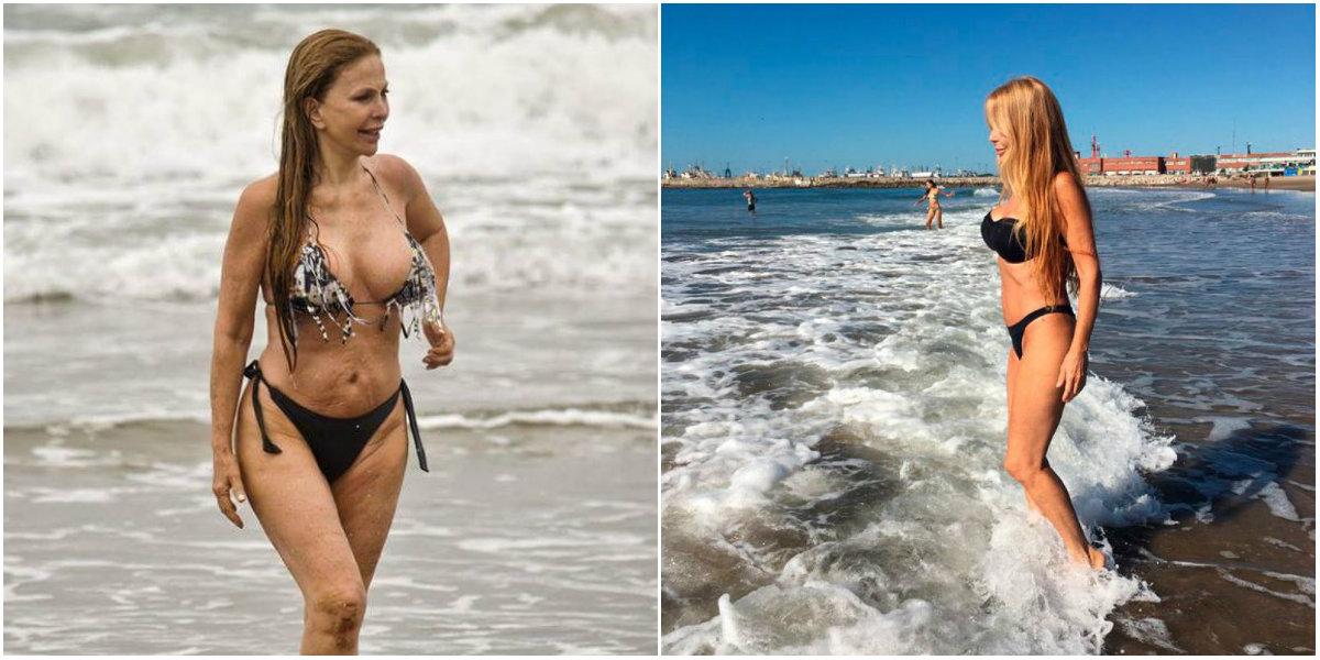 Liposucción de Graciela Alfano