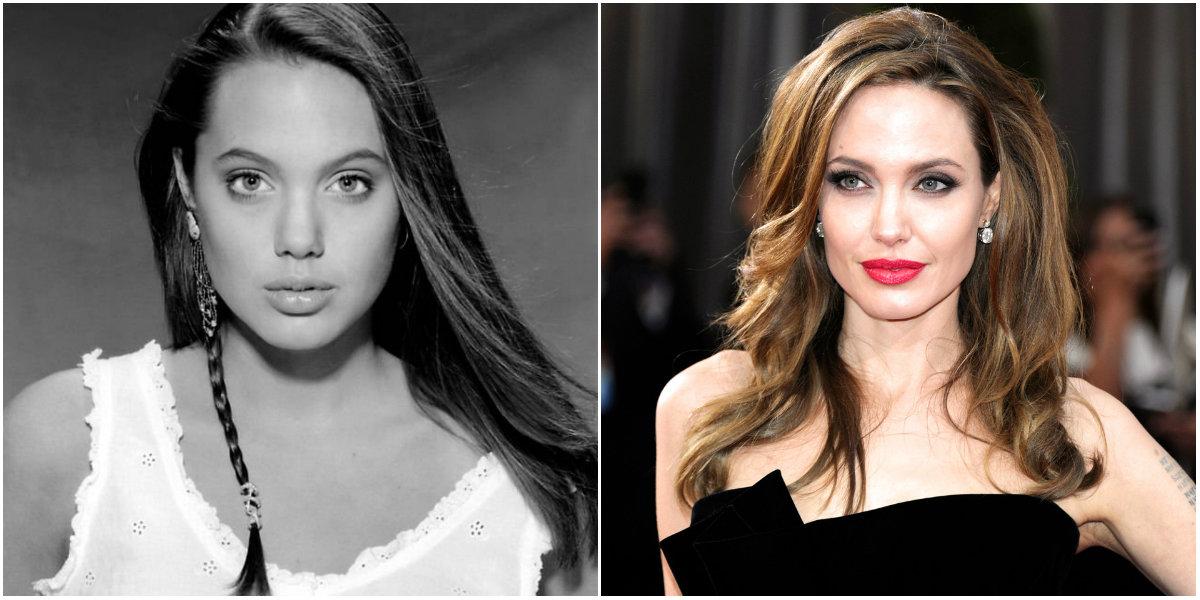 Malarplastia de Angelina Jolie