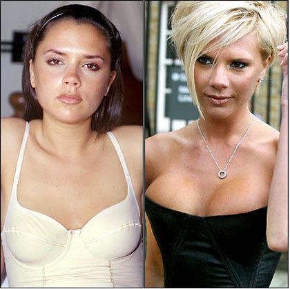 Aumento de busto de Victoria Beckham