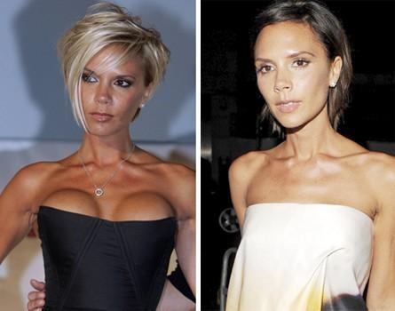 Implantes mamarios de Victoria Beckham