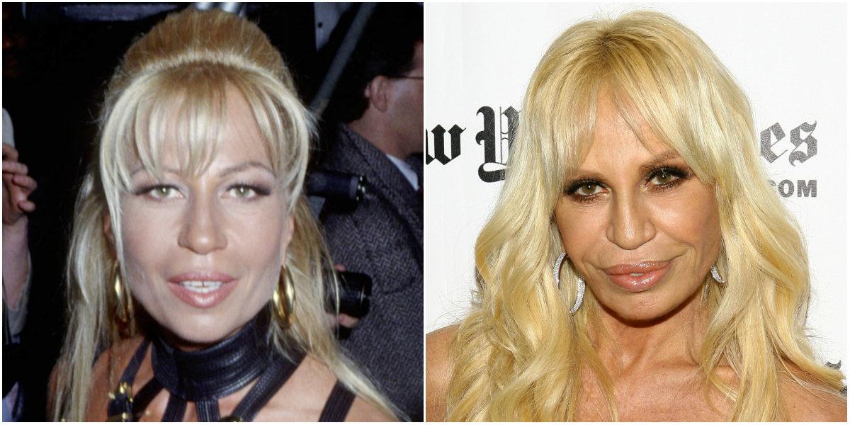 Donatella Versace cirugía