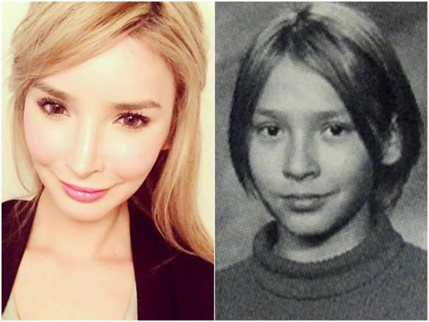 Jenna Talackova cirugía