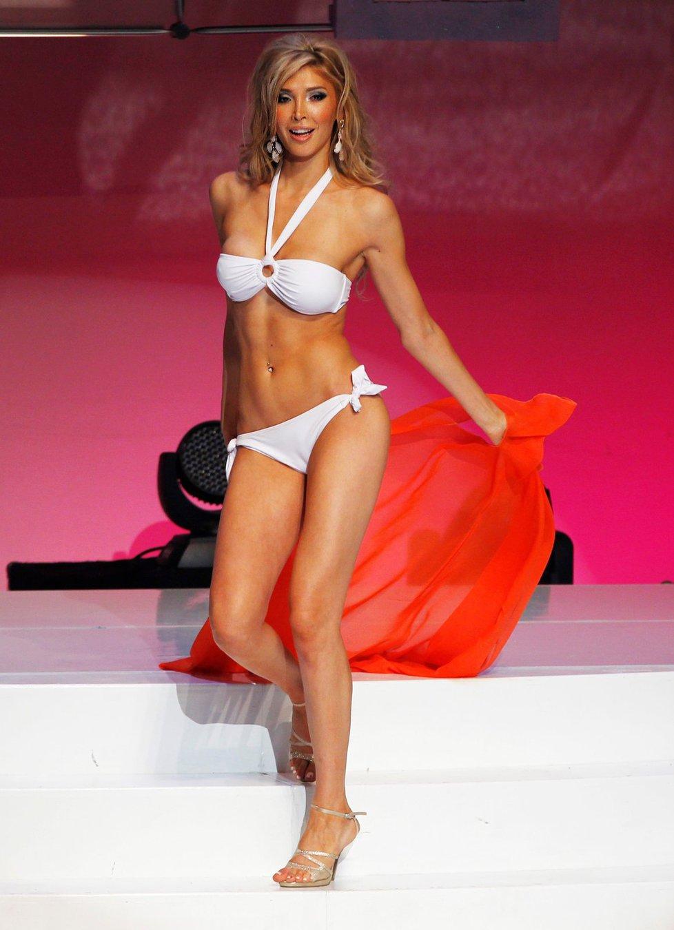 Jenna Talackova mamoplastia