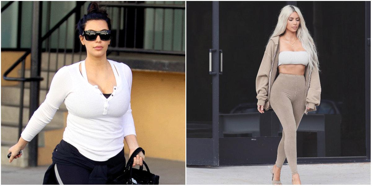 Kim Kardashian liposucción