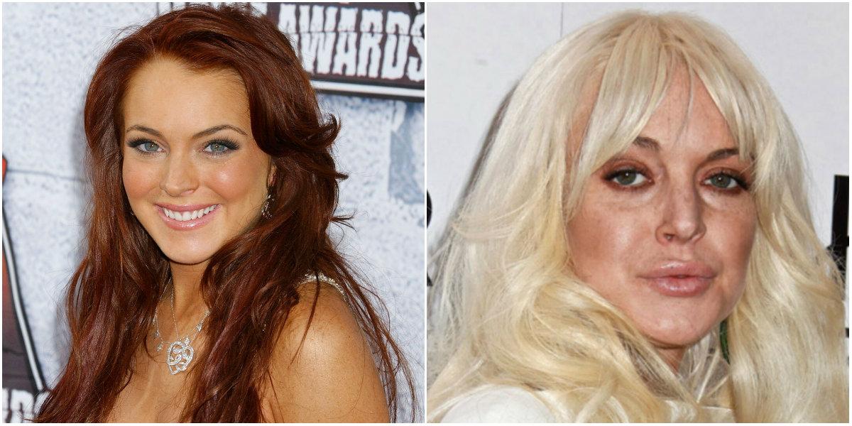 Lindsay Lohan cirugía