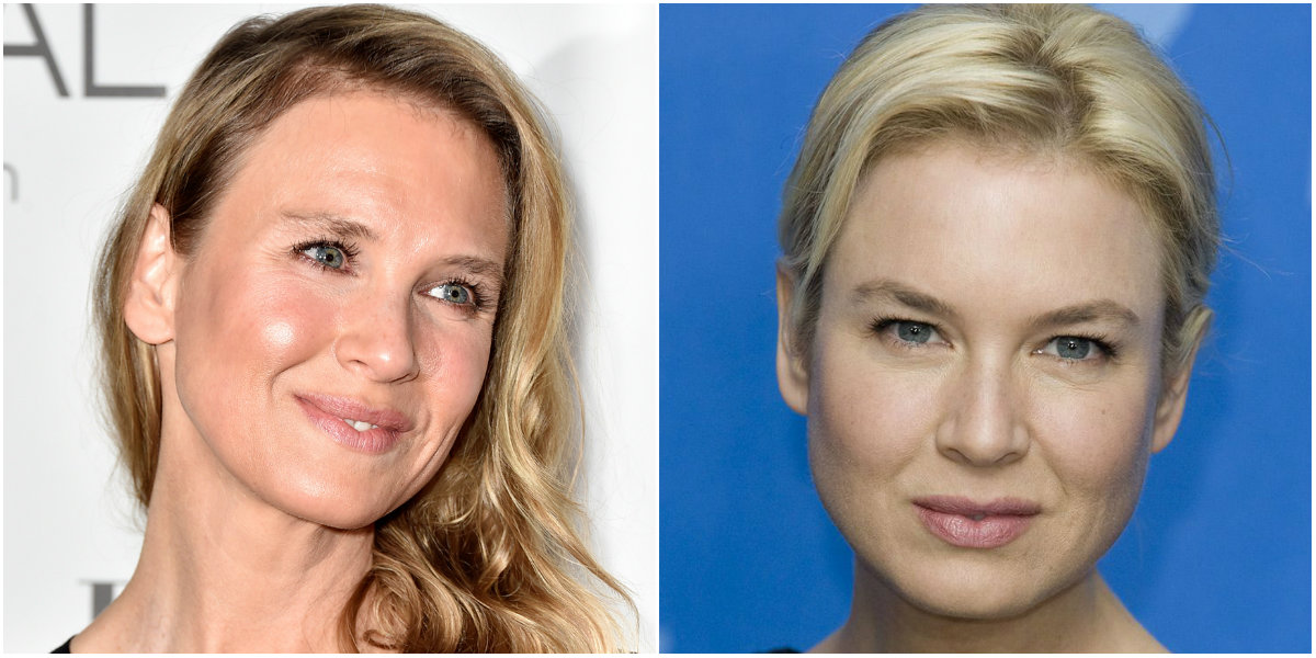 Renée Zellweger cirugía