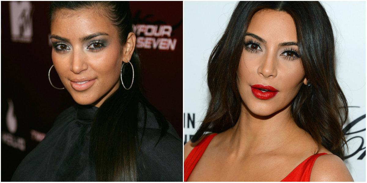Rinoplastia de Kim Kardashian
