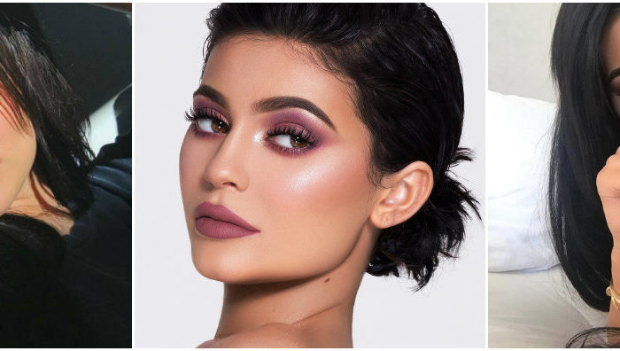 Cirugías de Kylie Jenner