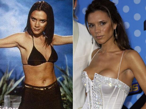 Reducción y aumento de busto de Victoria Beckham