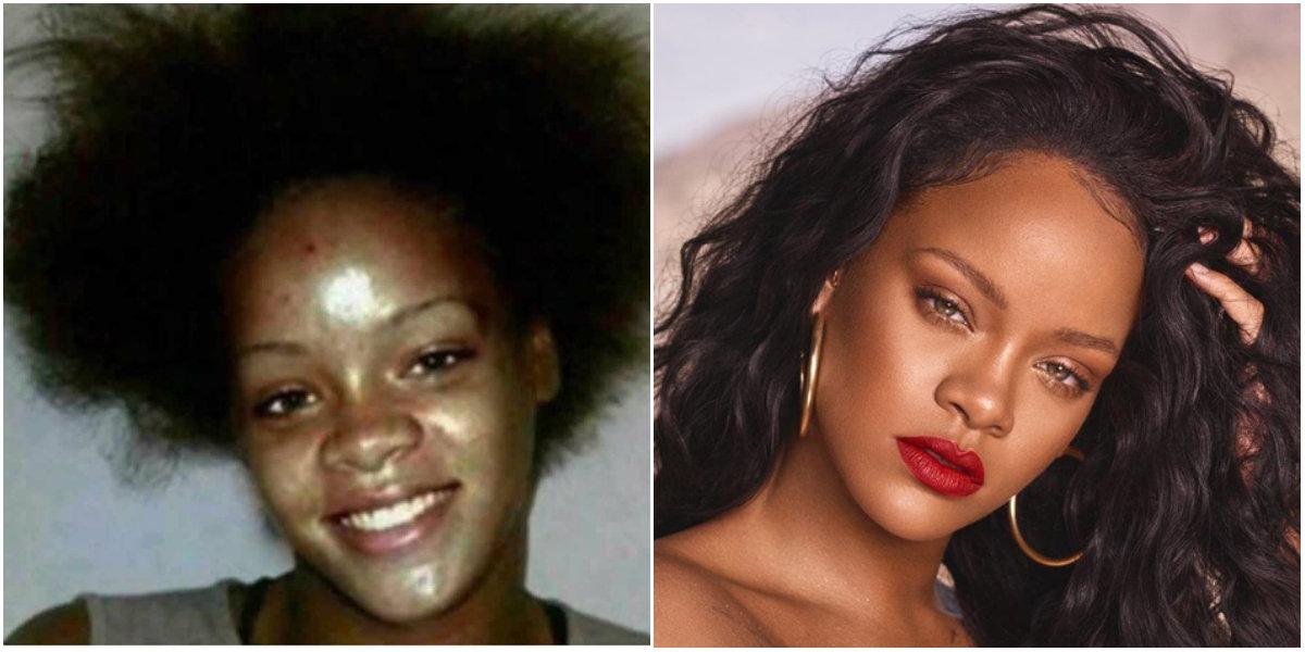 Antes y después de Rihanna