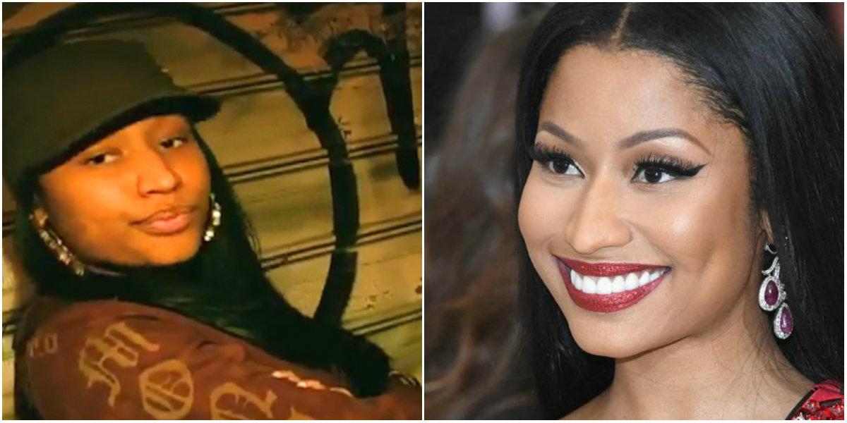 Cirugías plásticas de Nicki Minaj