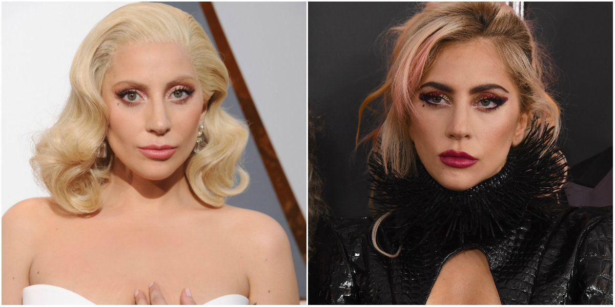 Lady Gaga after surgeries