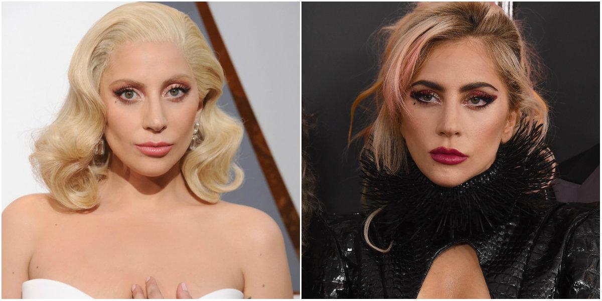 Lady Gaga after surgeries