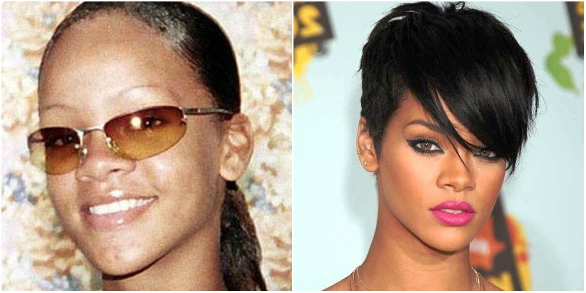 Rinoplastia de Rihanna