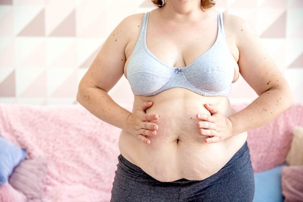 Cuánto cuesta una abdominoplastia (Tummy Tuck)